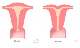 arcuate uterine-abnormality